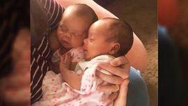 Pregnant Woman Changes Mind Mid-Abortion to Save Her Twins