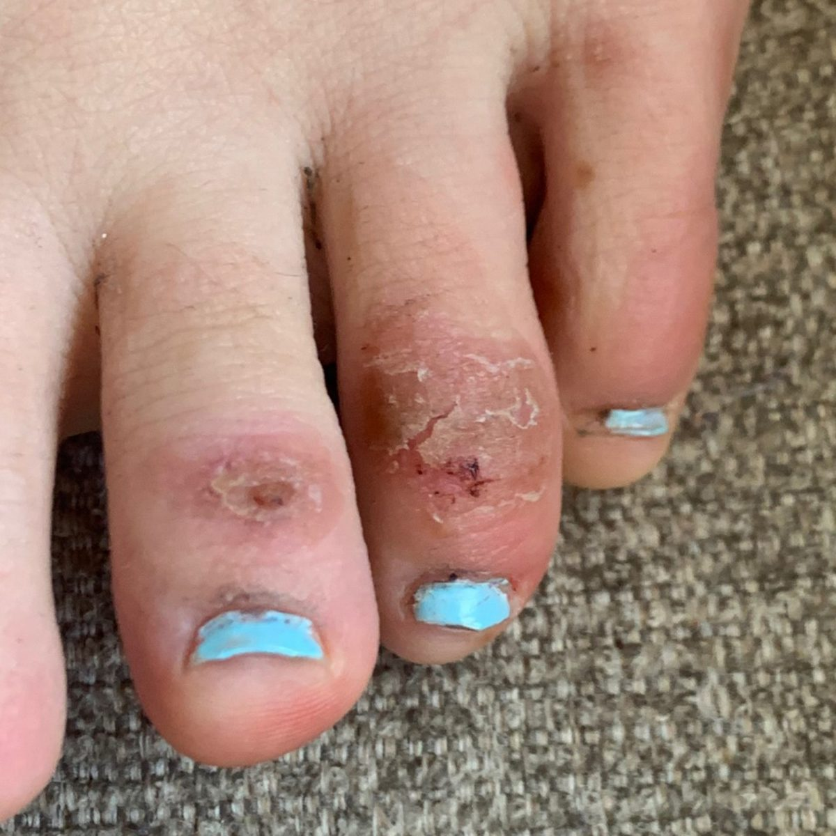 COVID toes 4 weeks later